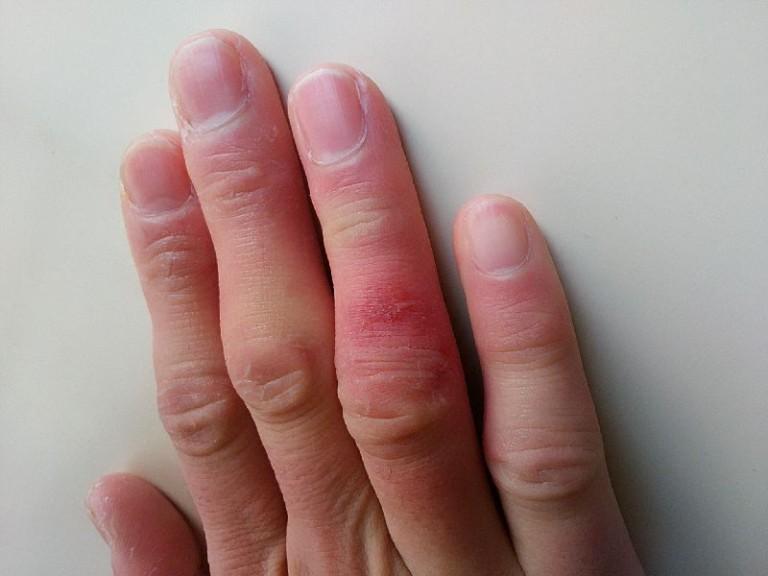 しもやけで手荒れが酷くて皮膚が切れて痛い・・最安でお得なハンドクリームは何か?ドラッグストアをまわってみた。